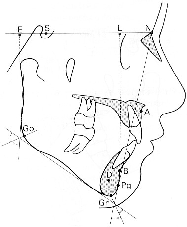 Convexidad facial nap
